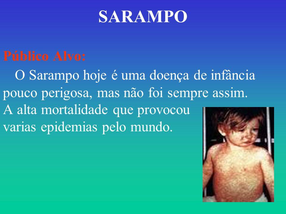 SARAMPO Público Alvo: O Sarampo hoje é uma doença de infância pouco perigosa, mas não foi sempre assim. A alta mortalidade que provocou varias epidemi