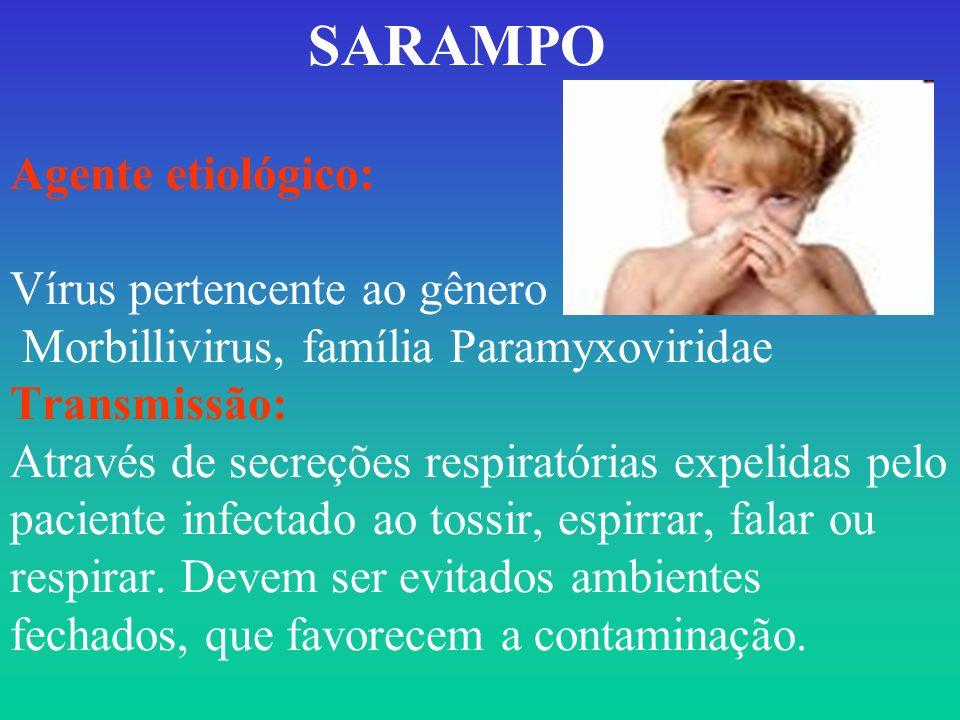 SARAMPO Agente etiológico: Vírus pertencente ao gênero Morbillivirus, família Paramyxoviridae Transmissão: Através de secreções respiratórias expelida