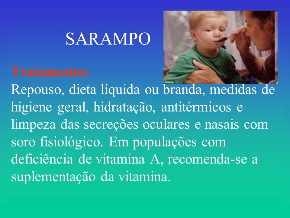 SARAMPO Tratamento: Repouso, dieta líquida ou branda, medidas de higiene geral, hidratação, antitérmicos e limpeza das secreções oculares e nasais com