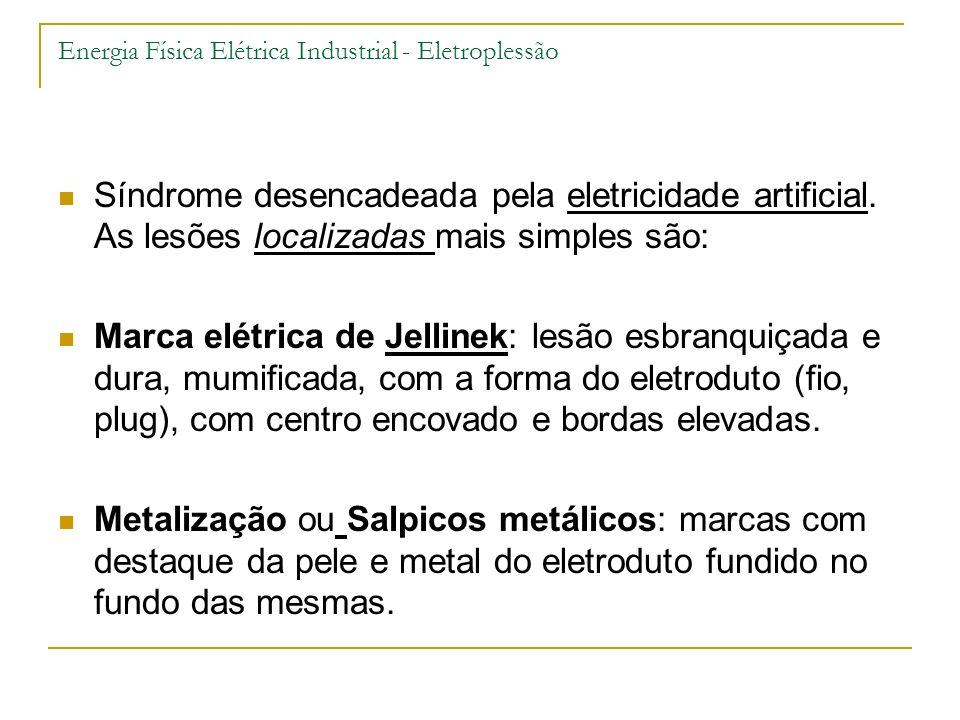 Energia Física Elétrica Industrial - Eletroplessão Síndrome desencadeada pela eletricidade artificial. As lesões localizadas mais simples são: Marca e