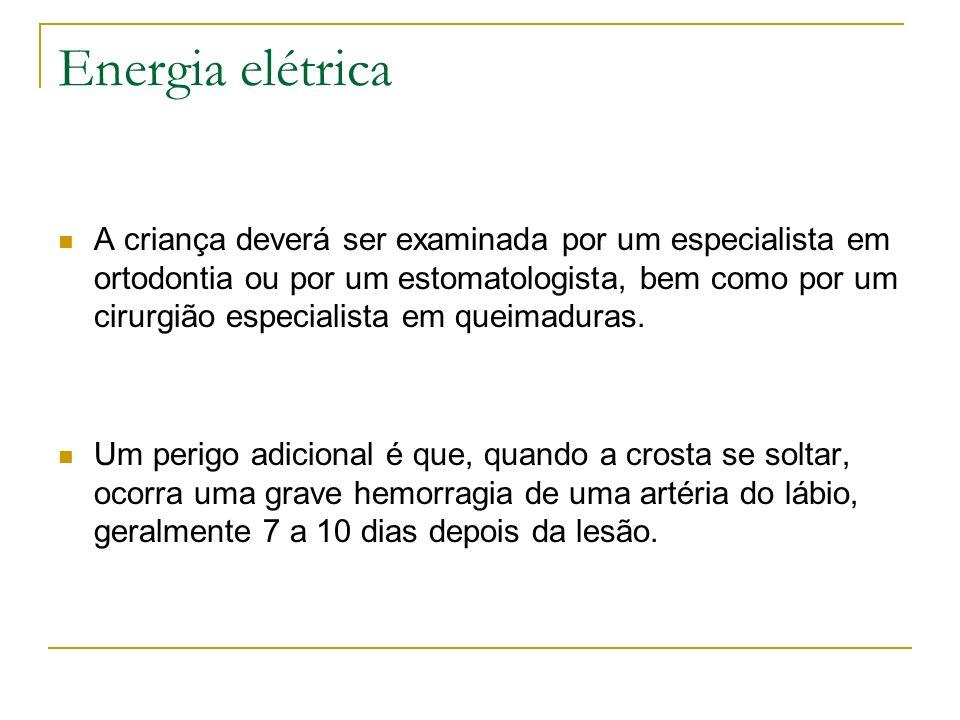 Energia elétrica A criança deverá ser examinada por um especialista em ortodontia ou por um estomatologista, bem como por um cirurgião especialista em