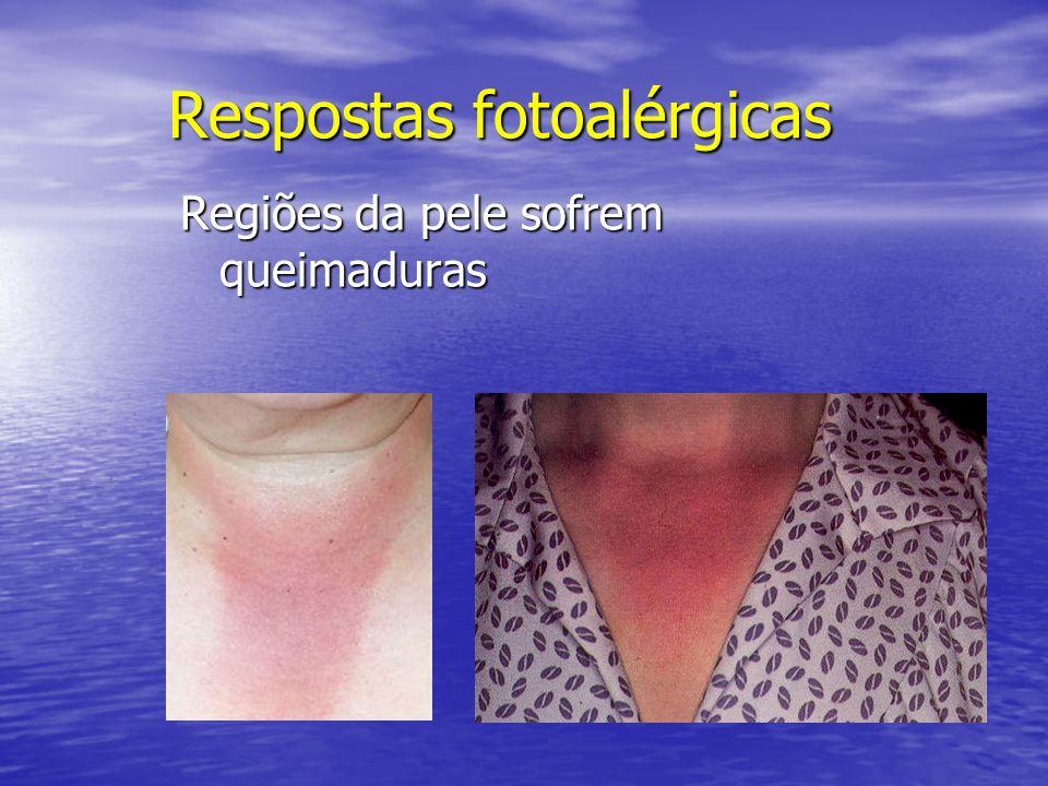 Respostas fotoalérgicas Regiões da pele sofrem queimaduras