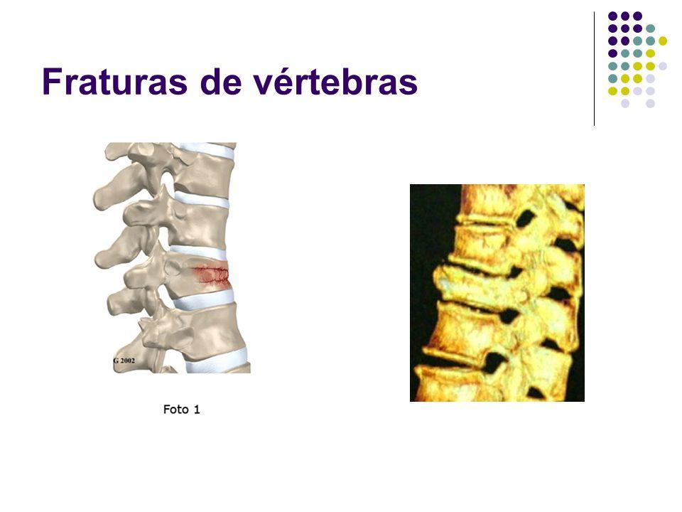 Fraturas de vértebras