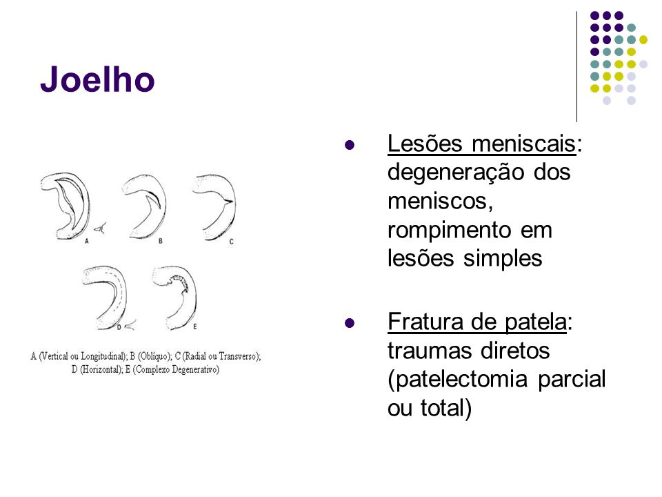 Joelho Lesões meniscais: degeneração dos meniscos, rompimento em lesões simples Fratura de patela: traumas diretos (patelectomia parcial ou total)
