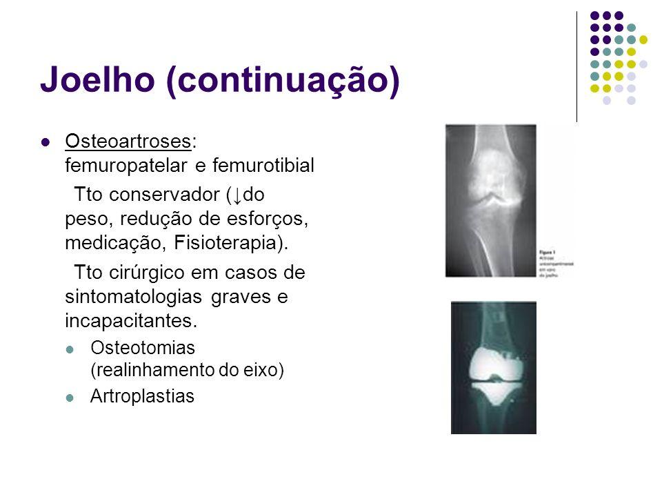 Joelho (continuação) Osteoartroses: femuropatelar e femurotibial Tto conservador (do peso, redução de esforços, medicação, Fisioterapia). Tto cirúrgic