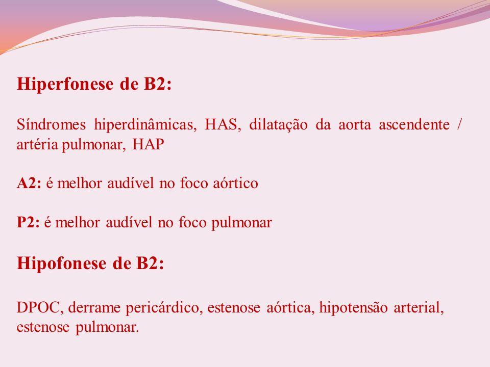 Hiperfonese de B2: Síndromes hiperdinâmicas, HAS, dilatação da aorta ascendente / artéria pulmonar, HAP A2: é melhor audível no foco aórtico P2: é mel