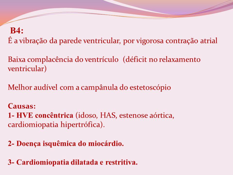B4: É a vibração da parede ventricular, por vigorosa contração atrial Baixa complacência do ventrículo (déficit no relaxamento ventricular) Melhor aud