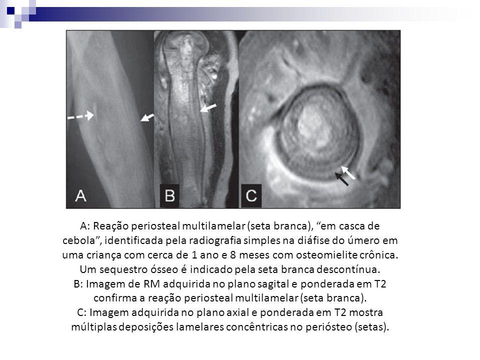 A: Reação periosteal multilamelar (seta branca), em casca de cebola, identificada pela radiografia simples na diáfise do úmero em uma criança com cerc