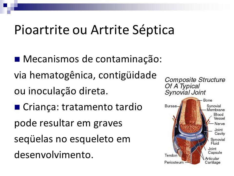 Pioartrite ou Artrite Séptica Mecanismos de contaminação: via hematogênica, contigüidade ou inoculação direta. Criança: tratamento tardio pode resulta