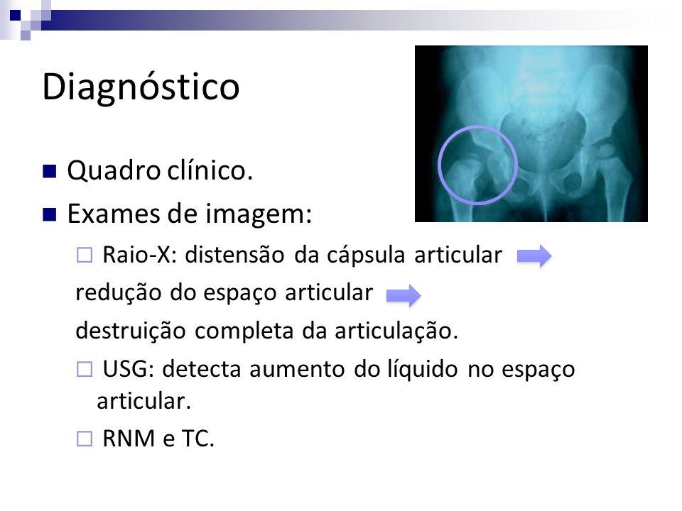Diagnóstico Quadro clínico. Exames de imagem: Raio-X: distensão da cápsula articular redução do espaço articular destruição completa da articulação. U