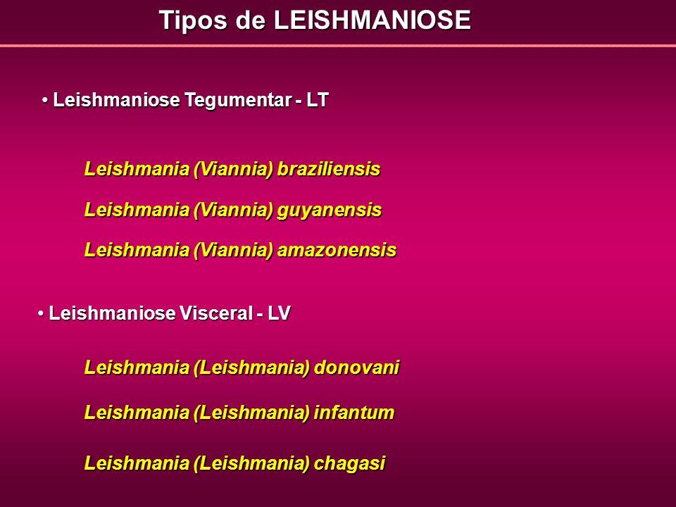 Tipos de LEISHMANIOSE Leishmaniose Tegumentar - LT Leishmaniose Tegumentar - LT Leishmaniose Visceral - LV Leishmaniose Visceral - LV Leishmania (Vian
