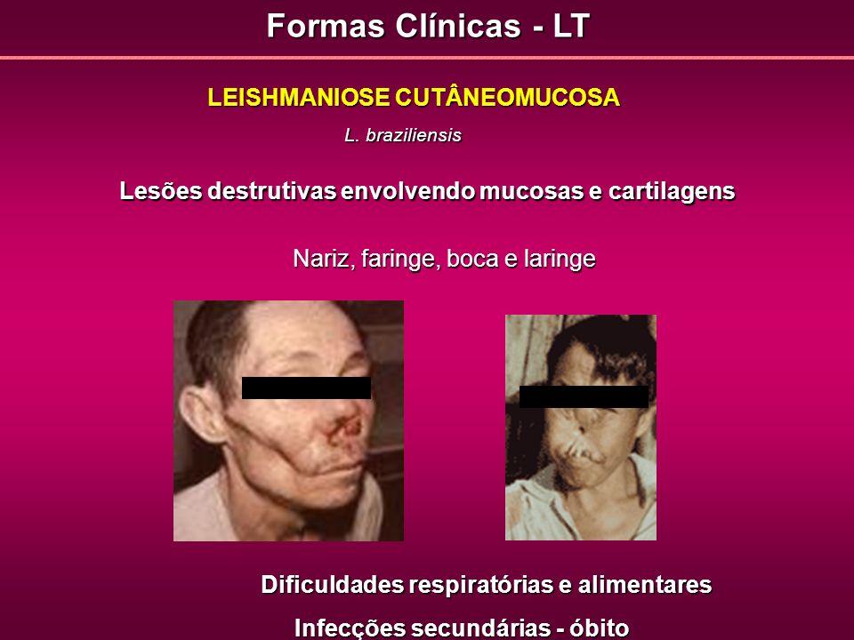 Formas Clínicas - LT LEISHMANIOSE CUTÂNEOMUCOSA L. braziliensis Lesões destrutivas envolvendo mucosas e cartilagens Nariz, faringe, boca e laringe Dif