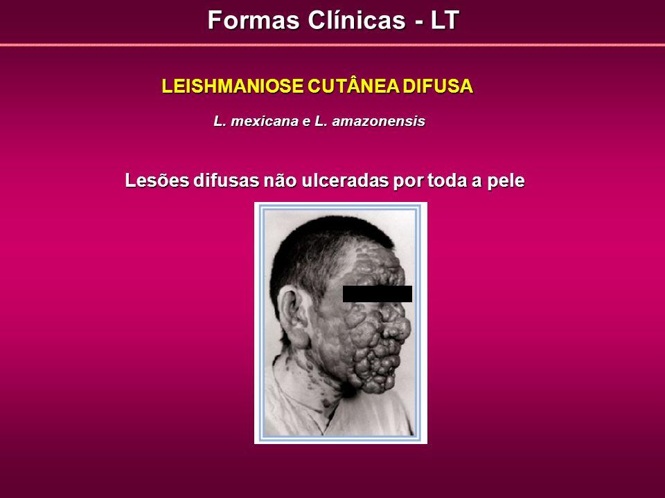 Formas Clínicas - LT LEISHMANIOSE CUTÂNEA DIFUSA L. mexicana e L. amazonensis Lesões difusas não ulceradas por toda a pele