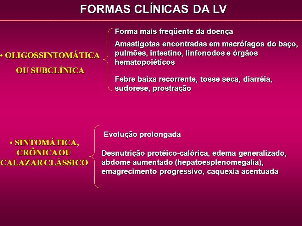 FORMAS CLÍNICAS DA LV SINTOMÁTICA, CRÔNICA OU CALAZAR CLÁSSICO SINTOMÁTICA, CRÔNICA OU CALAZAR CLÁSSICO Evolução prolongada Desnutrição protéico-calór