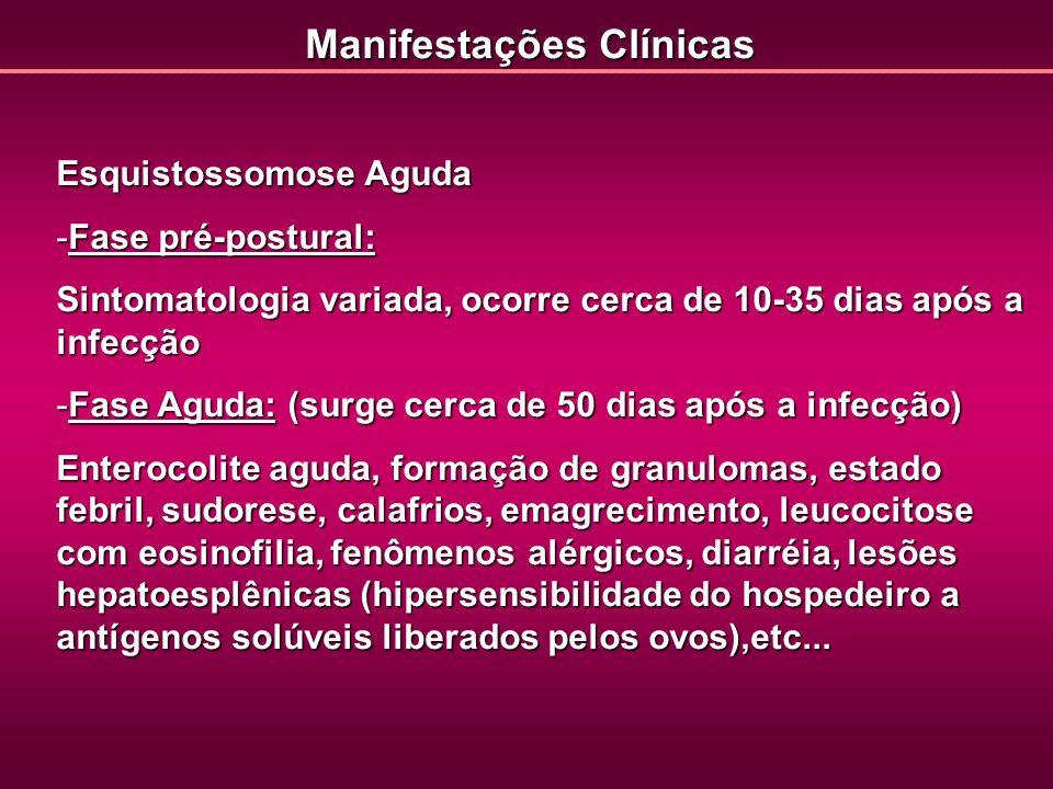 Esquistossomose Aguda -Fase pré-postural: Sintomatologia variada, ocorre cerca de 10-35 dias após a infecção -Fase Aguda: (surge cerca de 50 dias após