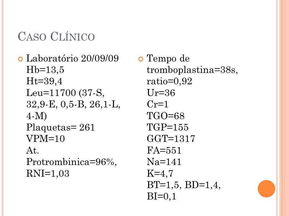 C ASO C LÍNICO Laboratório 20/09/09 Hb=13,5 Ht=39,4 Leu=11700 (37-S, 32,9-E, 0,5-B, 26,1-L, 4-M) Plaquetas= 261 VPM=10 At. Protrombinica=96%, RNI=1,03