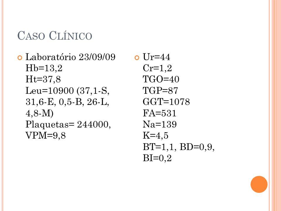 C ASO C LÍNICO Laboratório 23/09/09 Hb=13,2 Ht=37,8 Leu=10900 (37,1-S, 31,6-E, 0,5-B, 26-L, 4,8-M) Plaquetas= 244000, VPM=9,8 Ur=44 Cr=1,2 TGO=40 TGP=