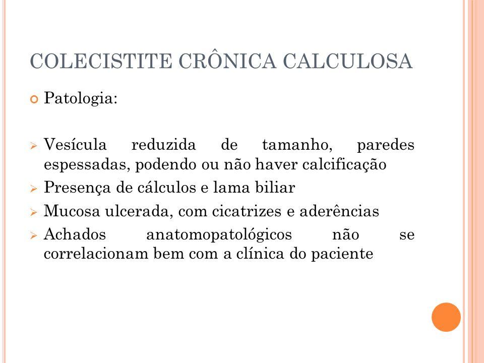 COLECISTITE CRÔNICA CALCULOSA Patologia: Vesícula reduzida de tamanho, paredes espessadas, podendo ou não haver calcificação Presença de cálculos e la