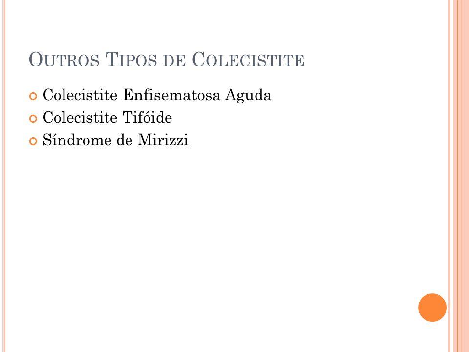 O UTROS T IPOS DE C OLECISTITE Colecistite Enfisematosa Aguda Colecistite Tifóide Síndrome de Mirizzi