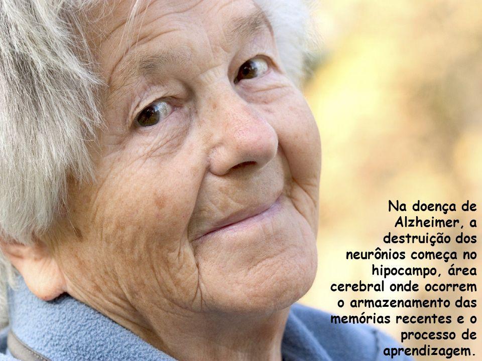 Na doença de Alzheimer, a destruição dos neurônios começa no hipocampo, área cerebral onde ocorrem o armazenamento das memórias recentes e o processo
