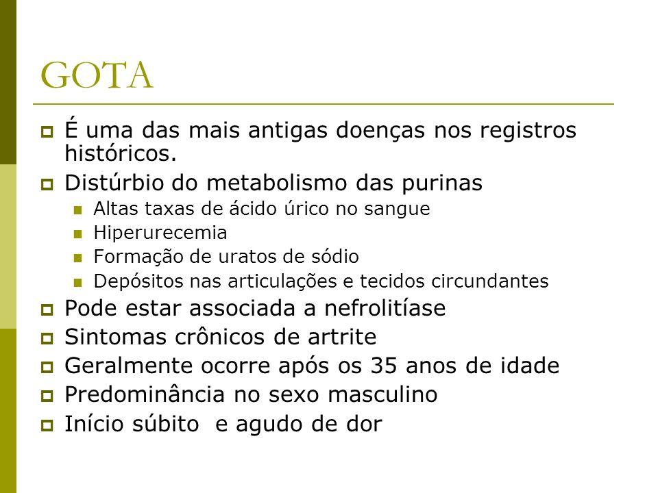 GOTA É uma das mais antigas doenças nos registros históricos. Distúrbio do metabolismo das purinas Altas taxas de ácido úrico no sangue Hiperurecemia