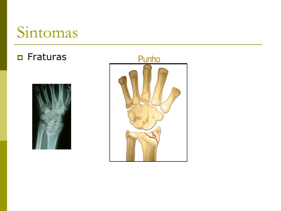 Sintomas Fraturas