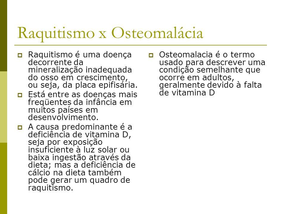 Raquitismo x Osteomalácia Raquitismo é uma doença decorrente da mineralização inadequada do osso em crescimento, ou seja, da placa epifisária. Está en
