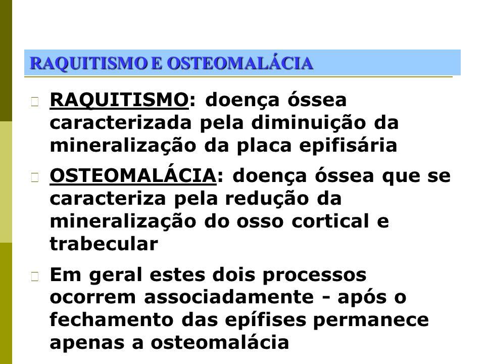 RAQUITISMO E OSTEOMALÁCIA RAQUITISMO: doença óssea caracterizada pela diminuição da mineralização da placa epifisária OSTEOMALÁCIA: doença óssea que s