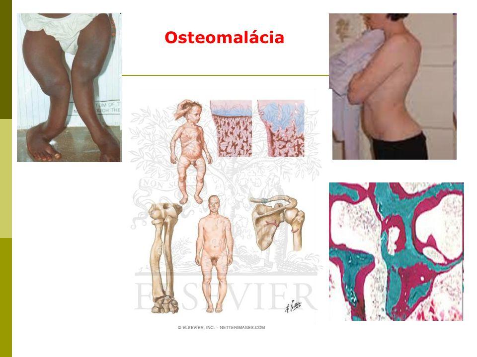 Osteomalácia