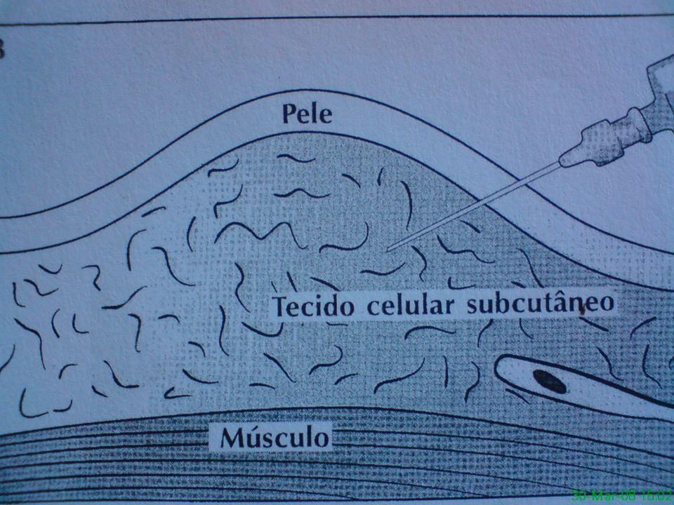 Via subcutânea Via intramuscular Via intravenosa (Veia safena) Via intravenosa Veia radial ou cefálica via intravenosa (Veia Julgular)