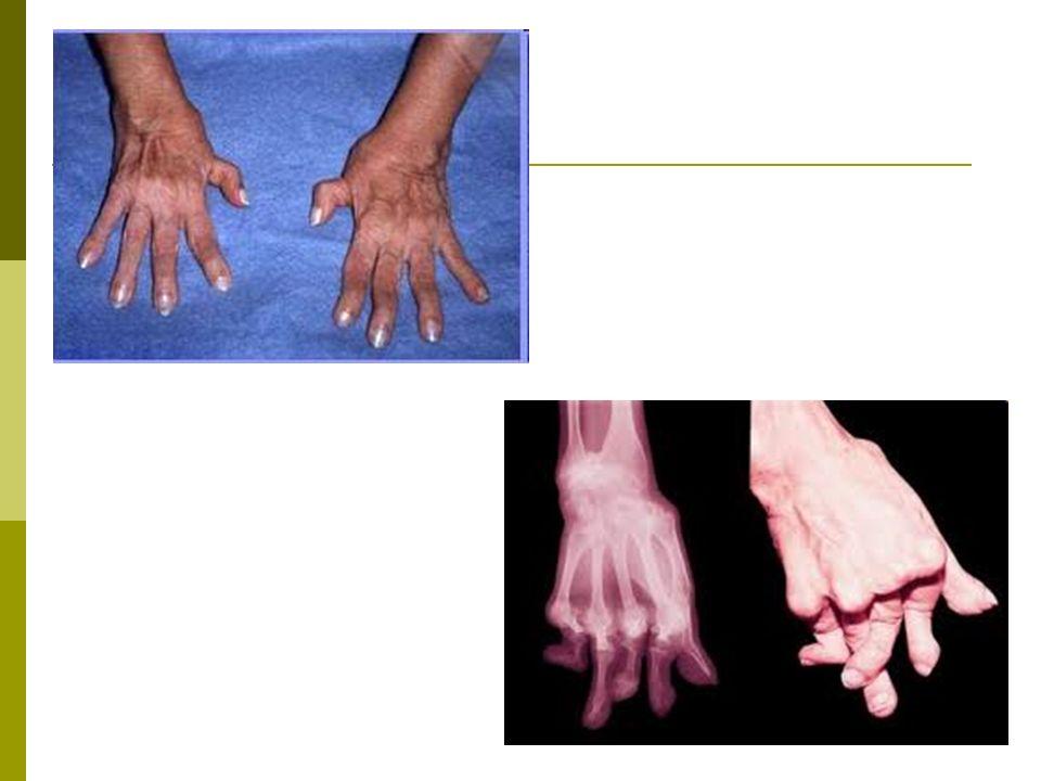 Artrite Reumatóide Avaliação nutricional Histórico familiar Antropometria História de alteração de peso Aumento de citocinas = associado à redução de massa corporal, ingesta energética e metabolismo.