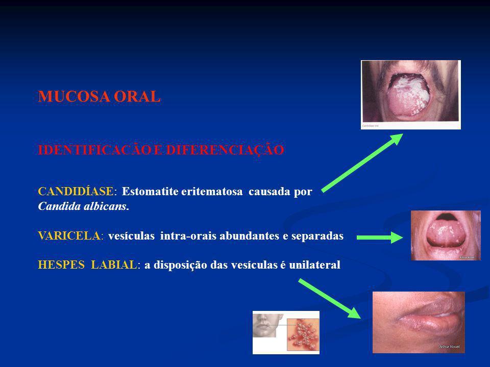 MUCOSA ORAL IDENTIFICACÃO E DIFERENCIAÇÃO CANDIDÍASE: Estomatite eritematosa causada por Candida albicans. VARICELA: vesículas intra-orais abundantes