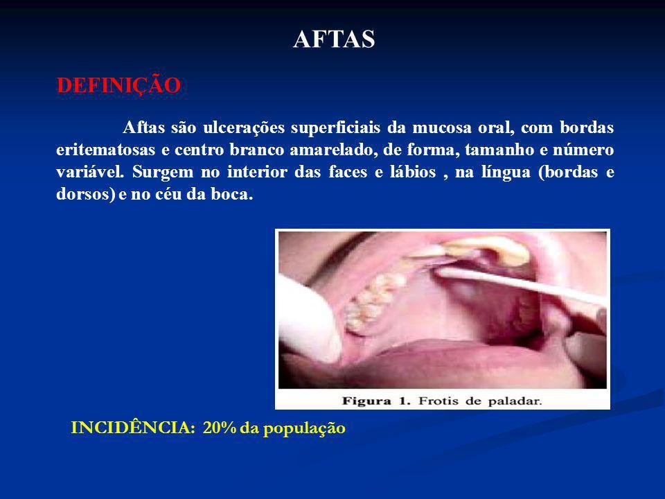 AFTAS DEFINIÇÃO Aftas são ulcerações superficiais da mucosa oral, com bordas eritematosas e centro branco amarelado, de forma, tamanho e número variáv