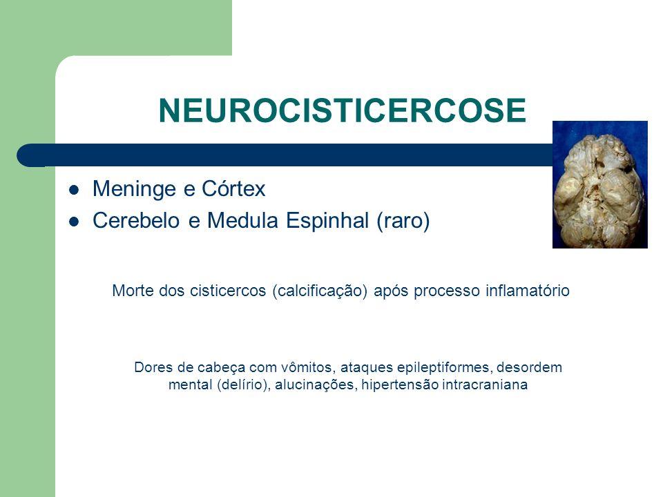 NEUROCISTICERCOSE Meninge e Córtex Cerebelo e Medula Espinhal (raro) Morte dos cisticercos (calcificação) após processo inflamatório Dores de cabeça c