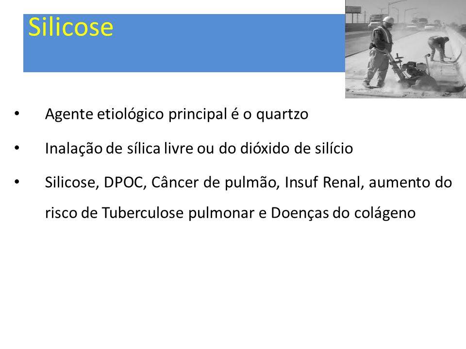 Silicose Agente etiológico principal é o quartzo Inalação de sílica livre ou do dióxido de silício Silicose, DPOC, Câncer de pulmão, Insuf Renal, aume