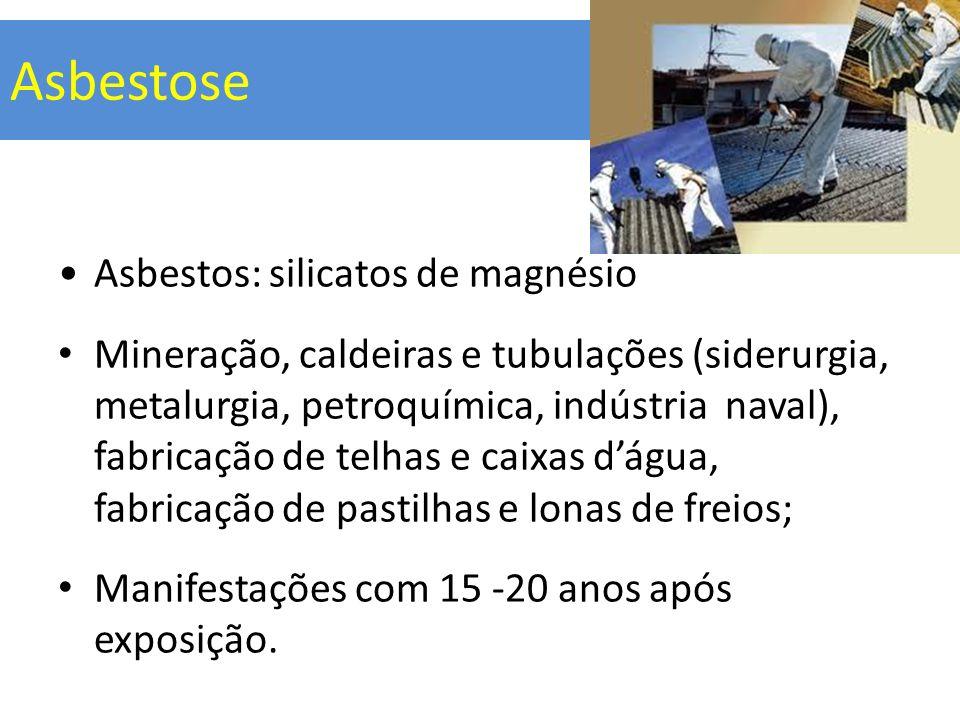 Asbestose Asbestos: silicatos de magnésio Mineração, caldeiras e tubulações (siderurgia, metalurgia, petroquímica, indústria naval), fabricação de tel
