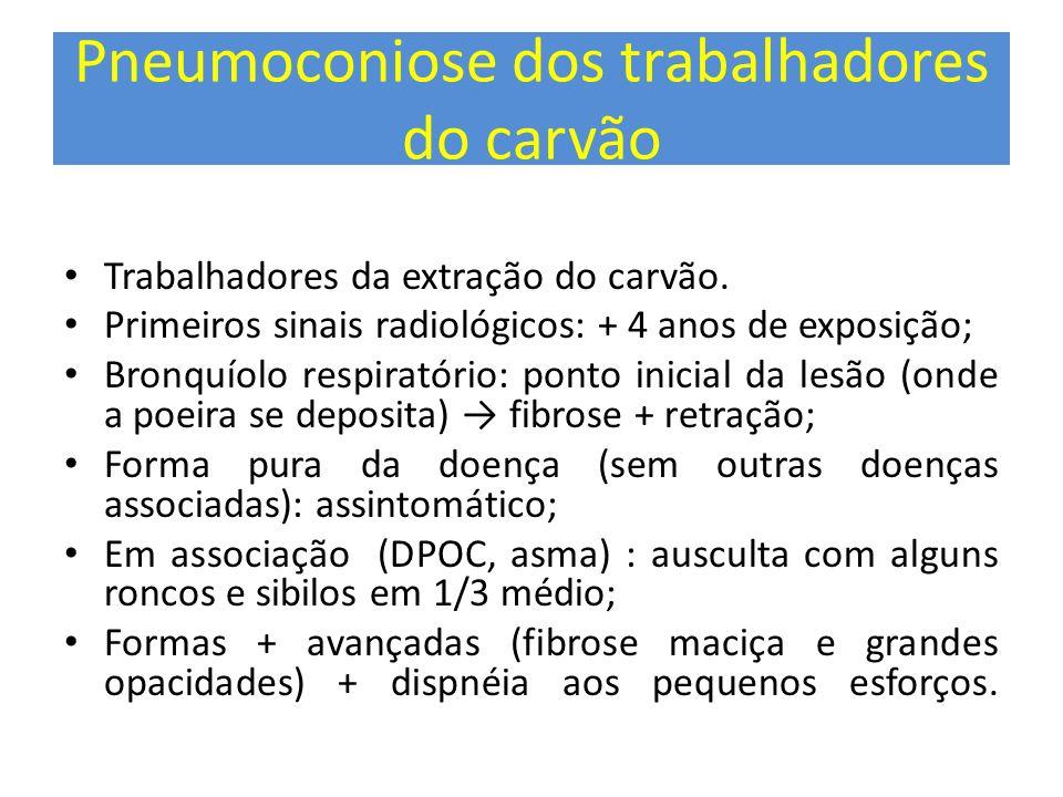 Pneumoconiose dos trabalhadores do carvão Trabalhadores da extração do carvão. Primeiros sinais radiológicos: + 4 anos de exposição; Bronquíolo respir
