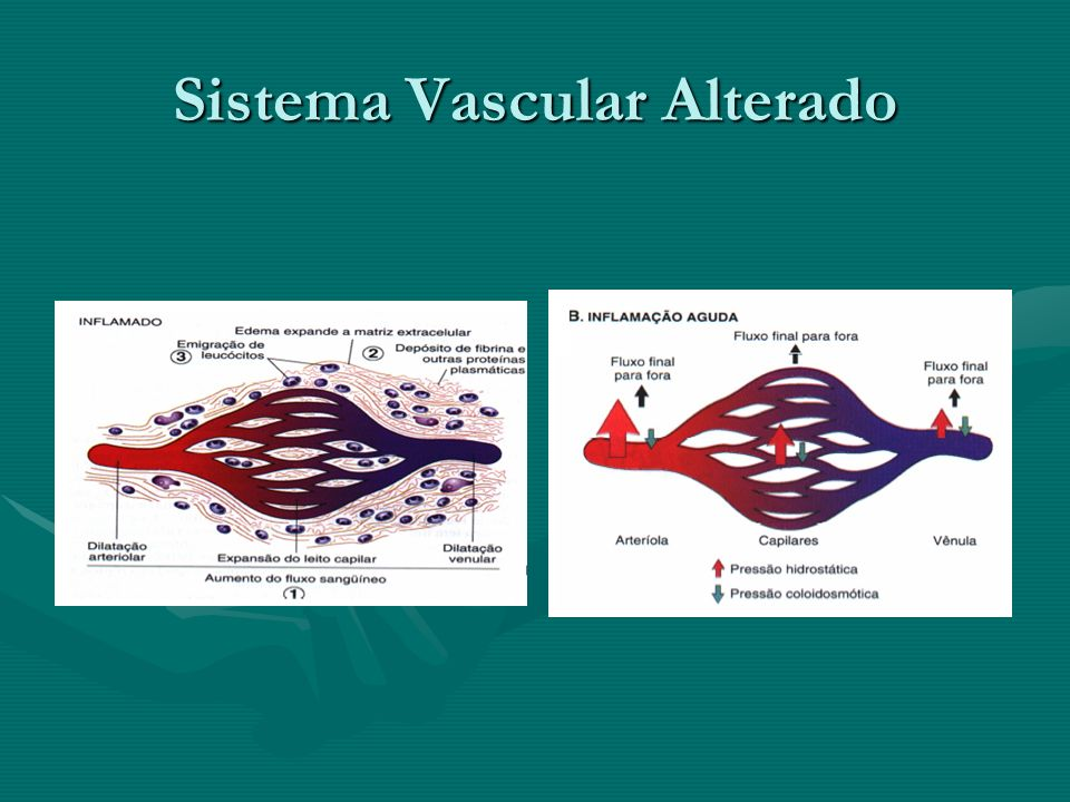 Sistema Vascular Alterado