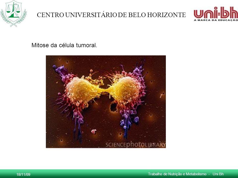 18/11/09 Trabalho de Nutrição e Metabolismo - Uni Bh CENTRO UNIVERSITÁRIO DE BELO HORIZONTE Mitose da célula tumoral.