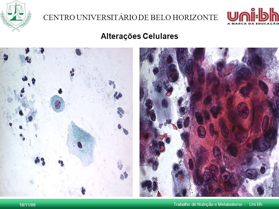 18/11/09 Trabalho de Nutrição e Metabolismo - Uni Bh CENTRO UNIVERSITÁRIO DE BELO HORIZONTE Alterações Celulares
