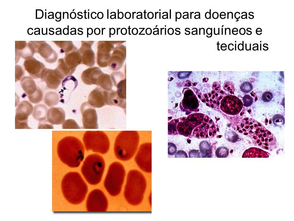 Diagnóstico laboratorial para doenças causadas por protozoários sanguíneos e teciduais