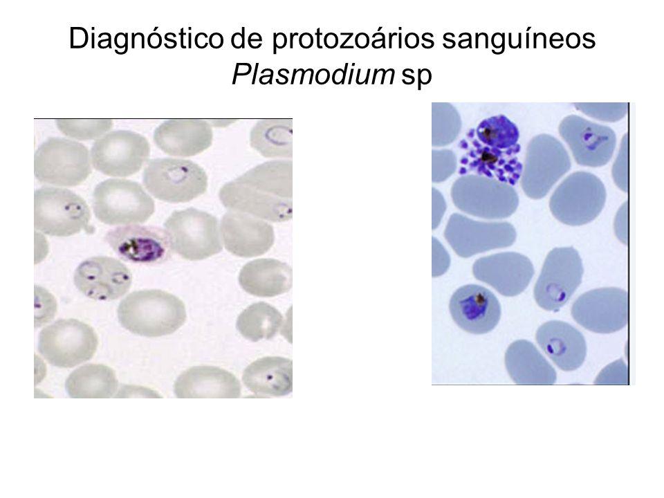 Diagnóstico de protozoários sanguíneos Plasmodium sp