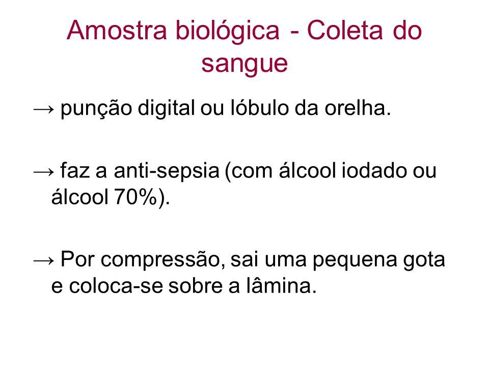 Amostra biológica - Coleta do sangue punção digital ou lóbulo da orelha. faz a anti-sepsia (com álcool iodado ou álcool 70%). Por compressão, sai uma
