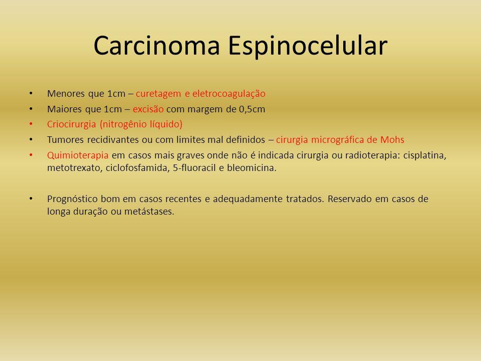 Carcinoma Espinocelular Menores que 1cm – curetagem e eletrocoagulação Maiores que 1cm – excisão com margem de 0,5cm Criocirurgia (nitrogênio líquido)