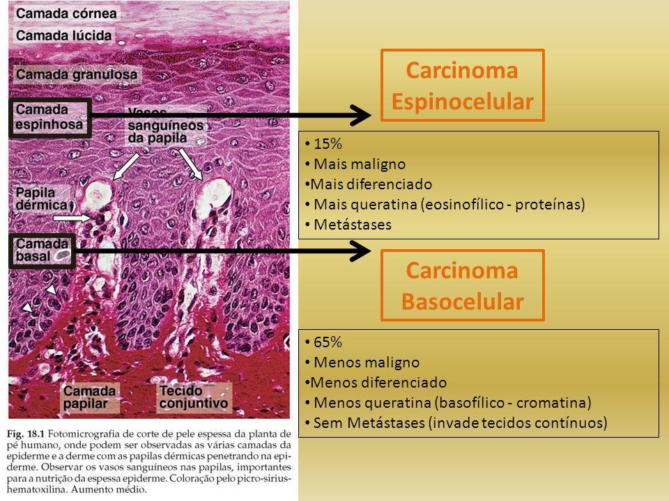 Carcinoma Espinocelular Carcinoma Basocelular 15% Mais maligno Mais diferenciado Mais queratina (eosinofílico - proteínas) Metástases 65% Menos malign
