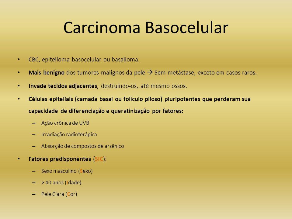 Carcinoma Basocelular CBC, epitelioma basocelular ou basalioma. Mais benigno dos tumores malignos da pele Sem metástase, exceto em casos raros. Invade