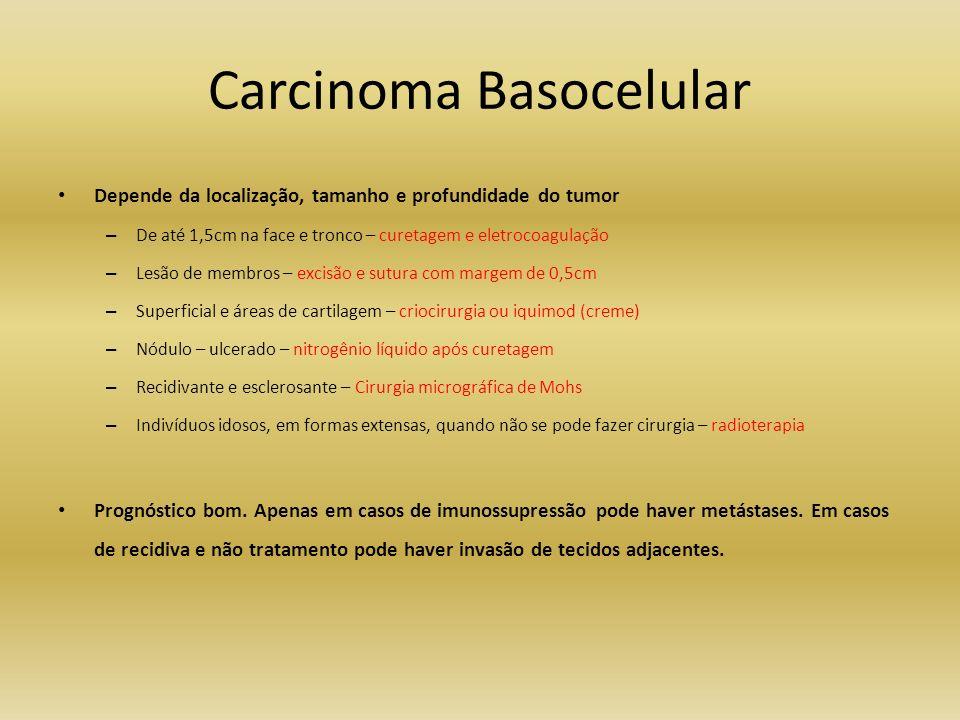 Carcinoma Basocelular Depende da localização, tamanho e profundidade do tumor – De até 1,5cm na face e tronco – curetagem e eletrocoagulação – Lesão d