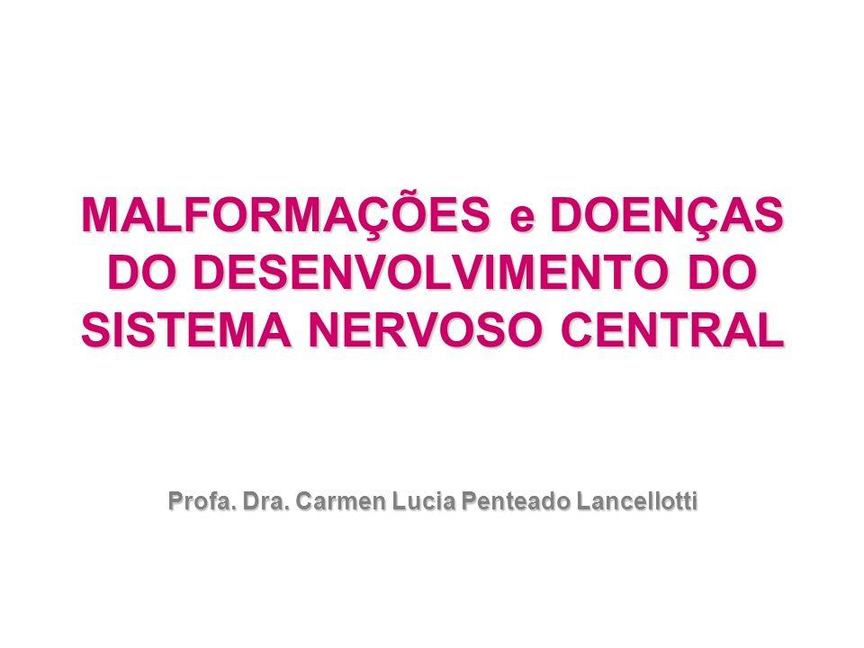MALFORMAÇÕES e DOENÇAS DO DESENVOLVIMENTO DO SISTEMA NERVOSO CENTRAL Profa. Dra. Carmen Lucia Penteado Lancellotti