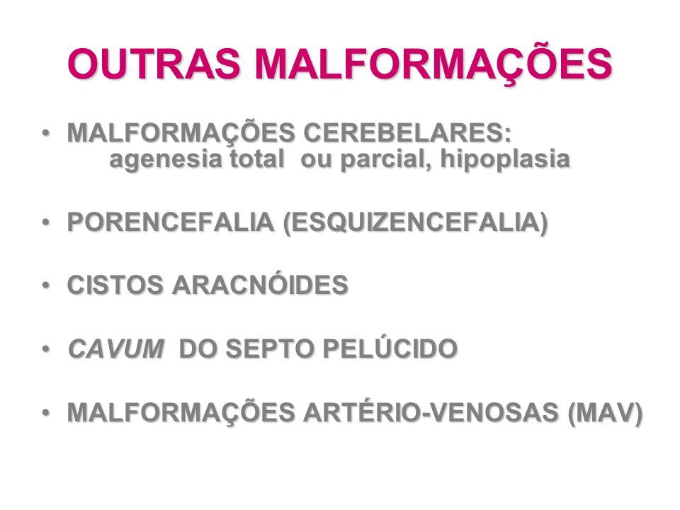 OUTRAS MALFORMAÇÕES MALFORMAÇÕES CEREBELARES: agenesia total ou parcial, hipoplasiaMALFORMAÇÕES CEREBELARES: agenesia total ou parcial, hipoplasia POR