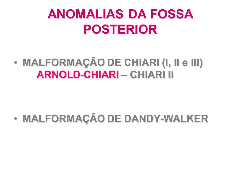 ANOMALIAS DA FOSSA POSTERIOR MALFORMAÇÃO DE CHIARI (I, II e III) ARNOLD-CHIARI – CHIARI IIMALFORMAÇÃO DE CHIARI (I, II e III) ARNOLD-CHIARI – CHIARI I